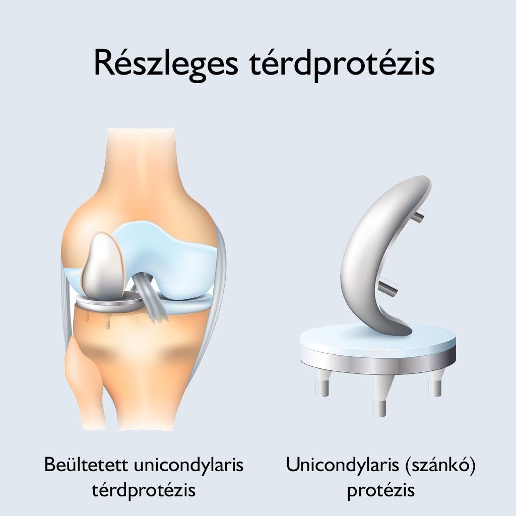 hogyan lehet térdízületeket fejleszteni artrózissal