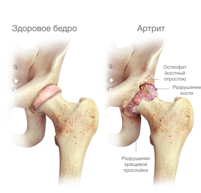 A csípőízület coxarthrosisának okai, tünetei és kezelése