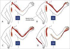 spondylosis arthrosis kezelés csontfájdalom és ízületi repedések