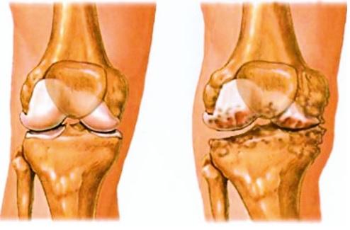 ha az ízület a sarok közelében van hogyan lehet kezelni a karok és a lábak ízületei artrózisát