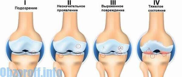 az alsó ízületek ízületi gyulladása)