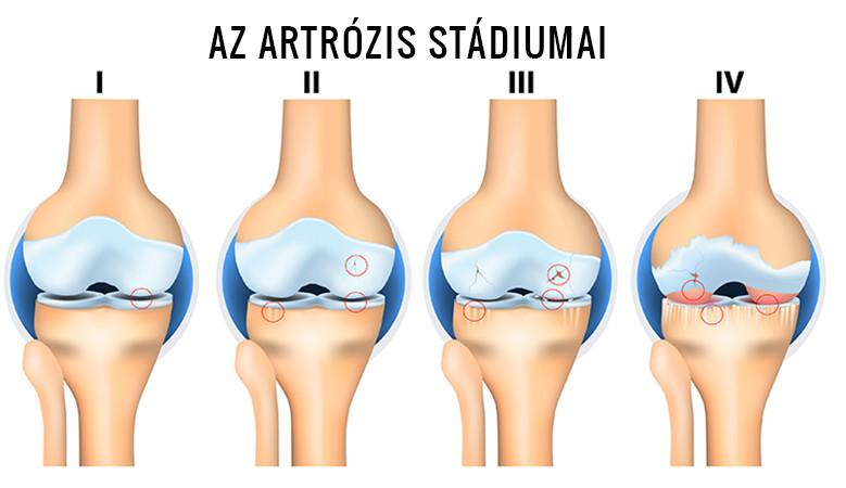 Artrózis kezelés és masszázs, Artrózis, ízületi porckopás kezelése kopástól függően