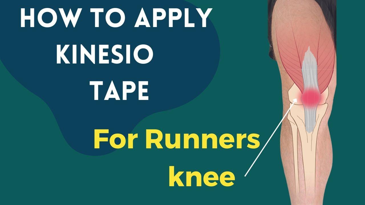 kinesio szalag térdízületnél artrózis esetén ízületi por ízületi kezelésre