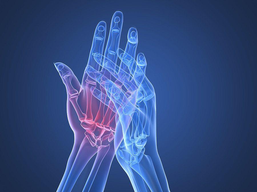 köményolaj ízületi fájdalmak kezelésére kundalini reiki együttes kezelés