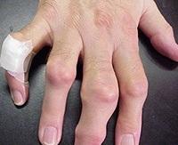 ízületi gyulladás egy tinédzser ujjain