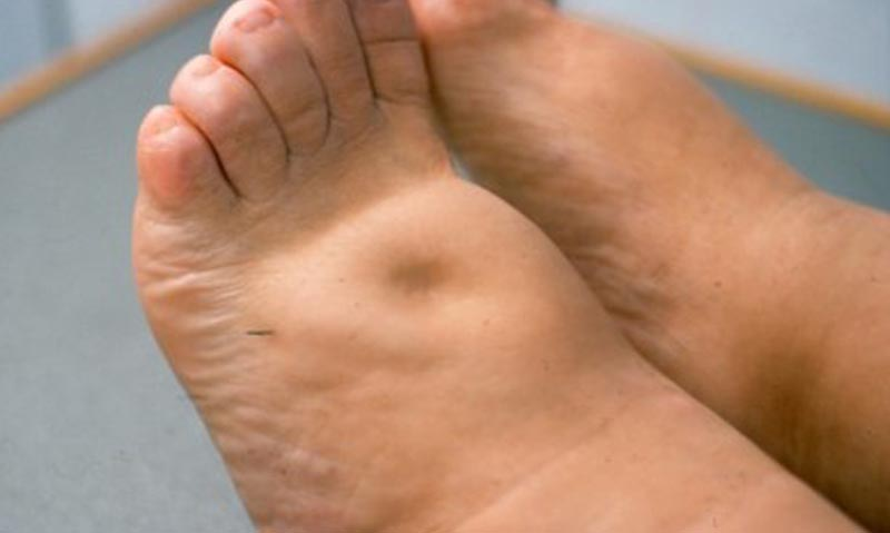 a lábak duzzanata artrózisos kezeléssel)
