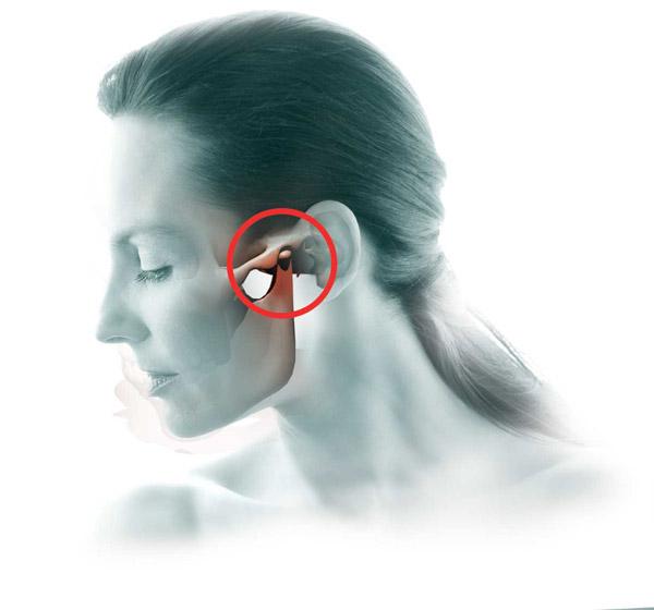 Az artrózisról és az állkapocs ízületi gyulladásról