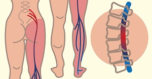 hogyan lehet kezelni a csípőízületek ragasztásait)