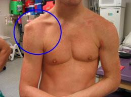 A karok duzzanata a humerus törése után