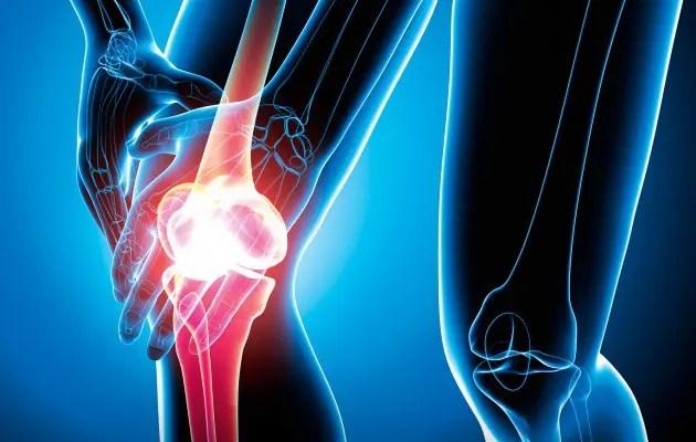 arthrosis kezelés, amelyet az orvos kezel