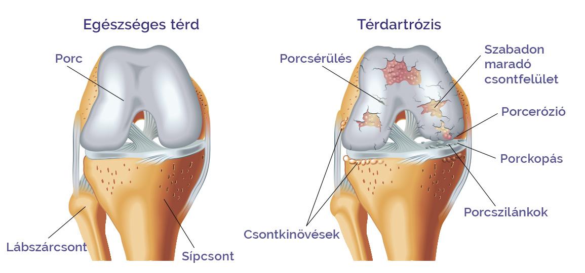 artrózis kezelés fiataloknál