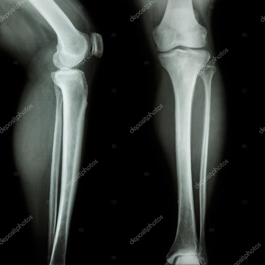 közös thuja térdízület osteoporosis kezelése