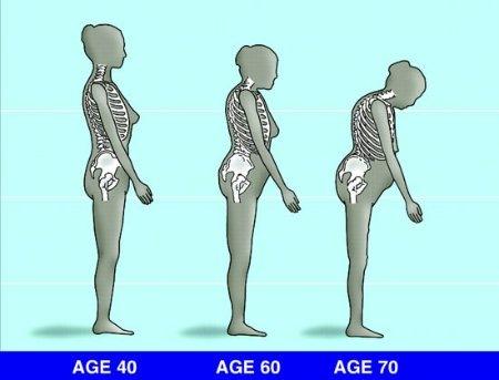 a csontritkulás kezelése milyen hatékonyságú