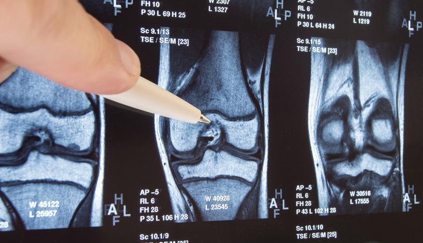 balzsamot vásárolni csontokhoz és ízületekhez fájdalom van a vállízületben és a nyakon