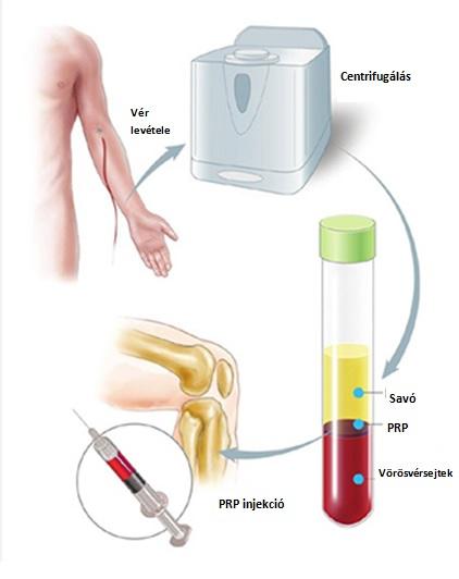 Ízületi injekciókról általában   panevino.huán István ortopéd sebész praxisa