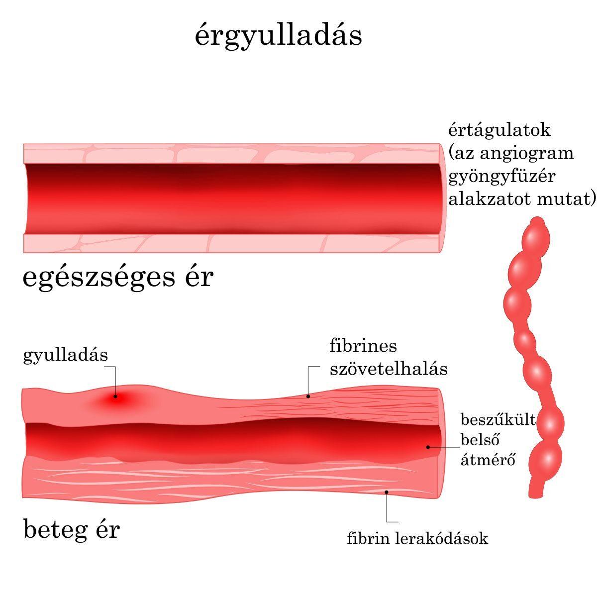 vasculitis ízületi gyulladás
