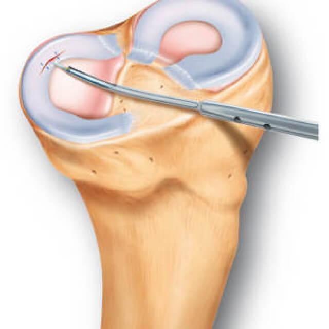 a térdízület meniszkuszának kürtje kezelés csípőtörés után