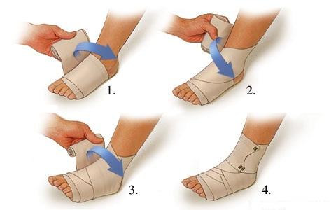 lábgyulladások ízületei