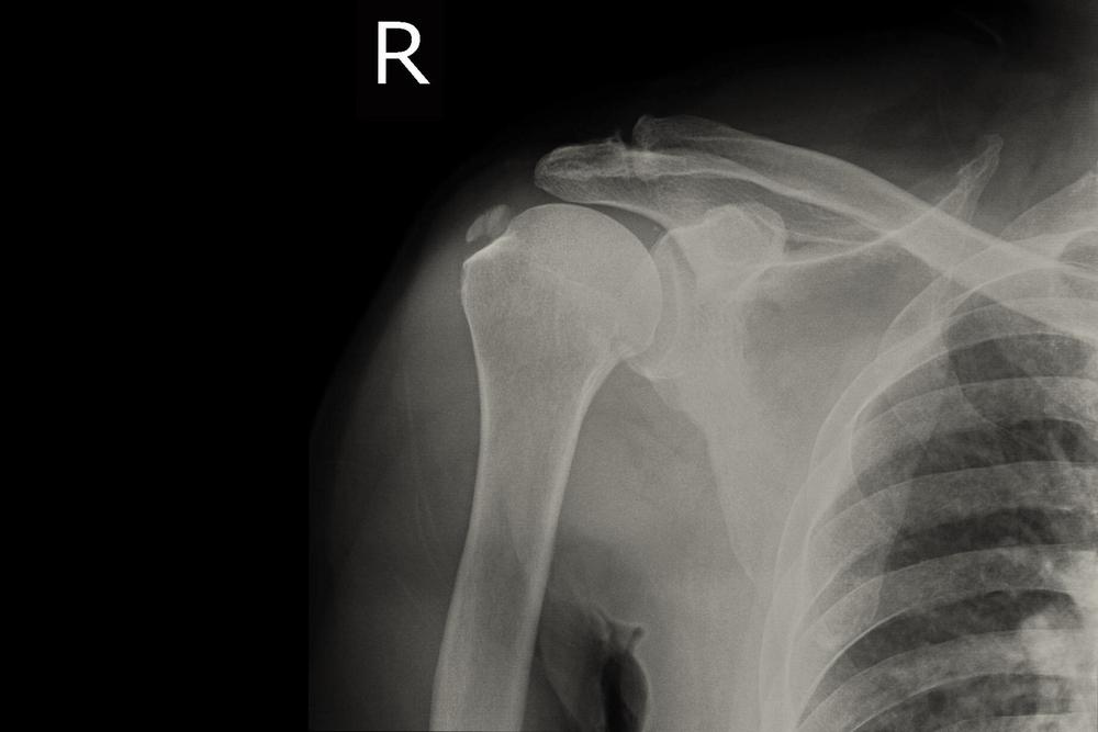 a vállízület-tabletták artrózisa akut, gennyes ízületi gyulladás