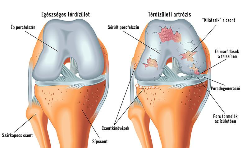a jobb térdízület krónikus intraartikuláris károsodása