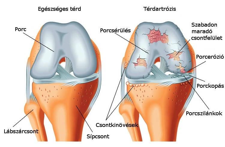 ízületi szteroidok