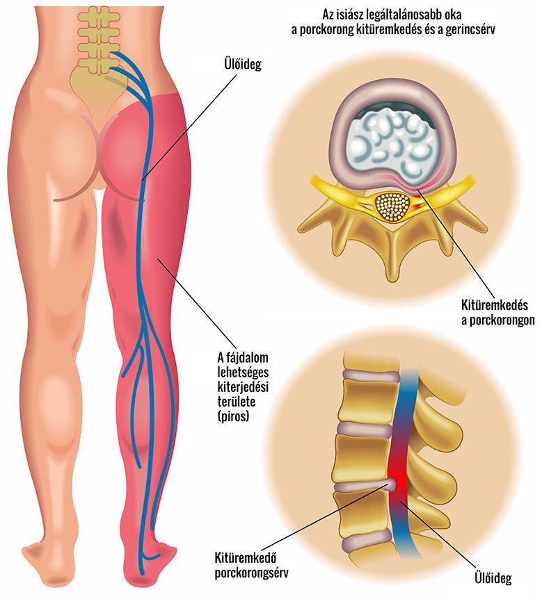 csípőből kisugárzó fájdalom