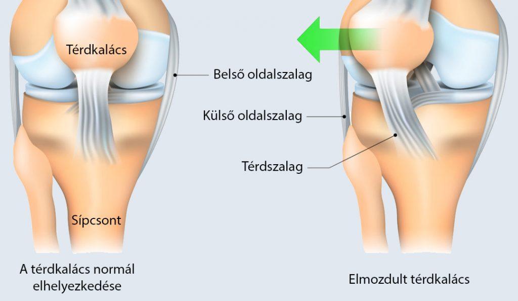 a lábak duzzanata a térdízületekben