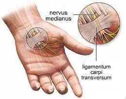 csukló fájdalom az ujjak hajlításával