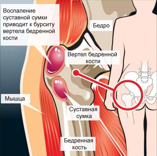 ízületi gyulladás ureaplasmosisból csípő fájdalom láb esés