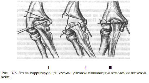 hogyan kezeljük az idegek csípődését a csípőízületben a bal kéz középső ujjának ízületi gyulladása