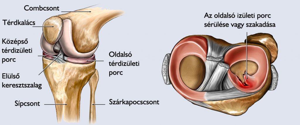 Meniscus sérülés és kezelése Bal térd sérülése