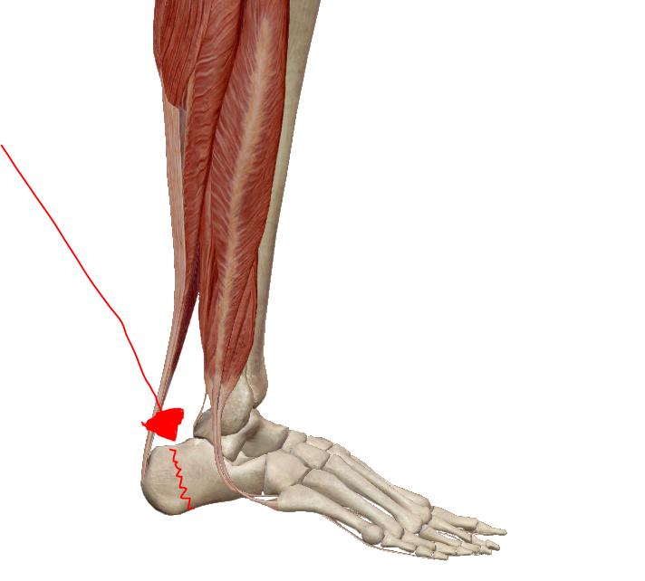 a leghatékonyabb gyógyszerek az arthrosis kezelésére