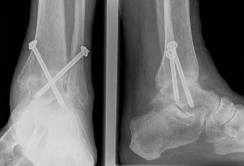 mi a boka posztraumás artrózisa