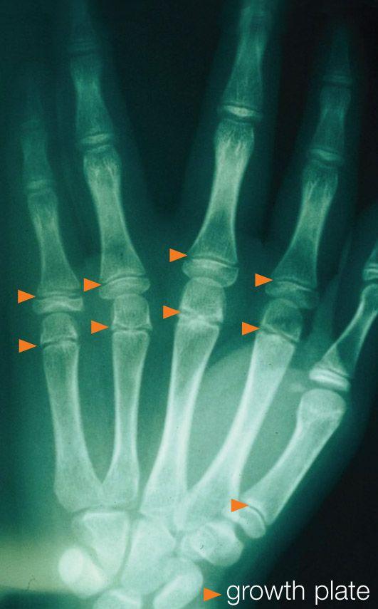 Jellemző tünetek és a kezek ízületi gyulladása