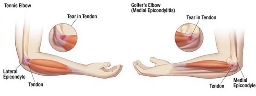 Könyökfájás - Fájdalom kezelése - 2020
