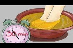 hogyan lehet megszabadulni az ízületi fájdalmaktól otthon ízületi fájdalom a sós ételek miatt