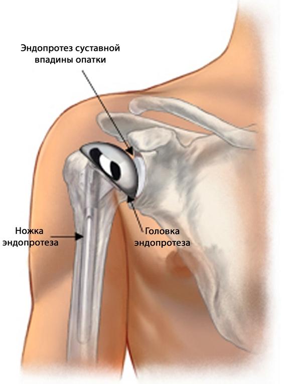 a térdízület 2. fokozatának deformáló osteochondroze