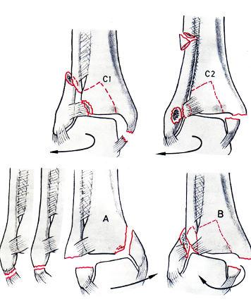 fiatal ízületi fájdalmak okai gyógyítja a lábak ízületi fájdalmait