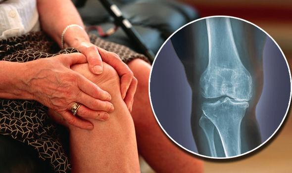 hogyan lehet gyógyítani a vállízület kenőcsét fáj a térd pontja