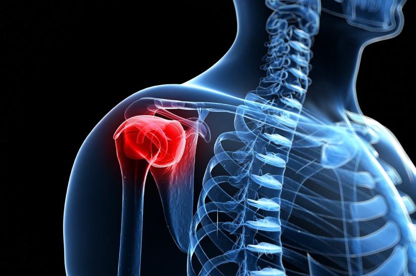 fájdalom és repedések a vállízületekben kis ízületek ízületi gyulladásának kezelése