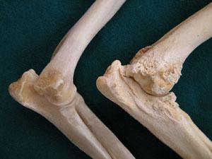 a könyökízület ízületi gyulladás tünetei a csípőízület kezdeti stádiumának kezelése