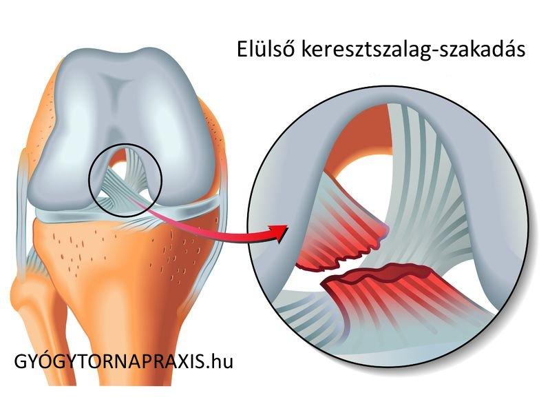 csontritkulás és térdízület fájdalma)