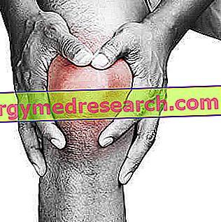 ízületi gyulladás a térdízület 3 fokát okozza izomlazító szerek az oszteokondrozisra