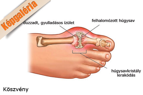 a lábízület szinovitisz kezelése