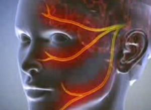 Scleroderma - mi az és hogyan kell kezelni - Vasculitis July