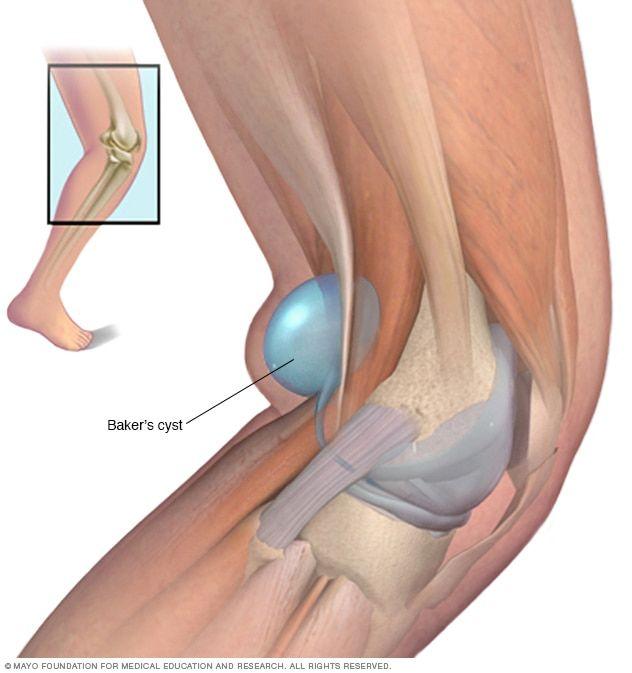 Térdfájdalom - Elsősegély és sérülések -