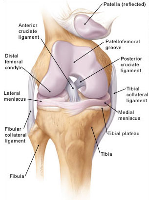 Térdfájdalom a térd belső oldalán, A jobb térdízület medialis meniszkuszának károsodása