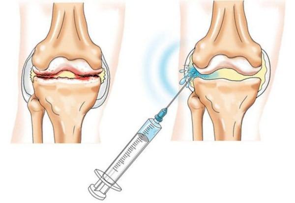 don csípőízület artrózisával jár