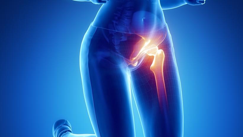 ízületi fájdalom csípőízület coxarthrosis inni tejet fájó ízületek