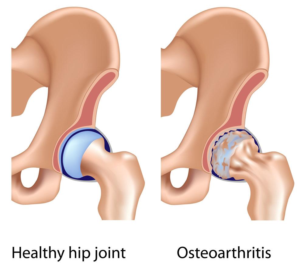 csípőízület osteochondrosis kezelése